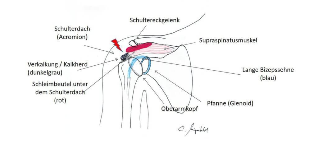 Die Schulter ist ein Spezialgebiet von Orthopäde und Chirurg Wingenfeld in Bonn