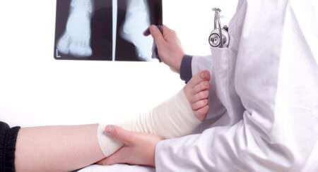 Sprunggelenk_Chirurgie_Wingenfeld